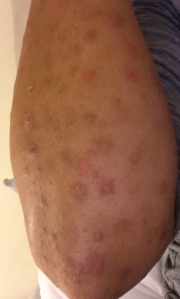 Pictures of my recent outbreak earlier this year