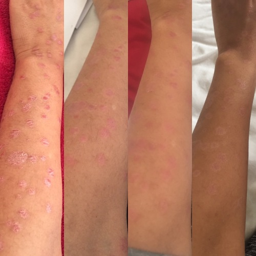 The progress of my skin. The first image of my arm was taken in February and the last image was taken at the end of April.